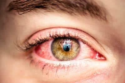 Jedna od najpoznatijih nuspojava koje uzrokuje THC su crvene oči.