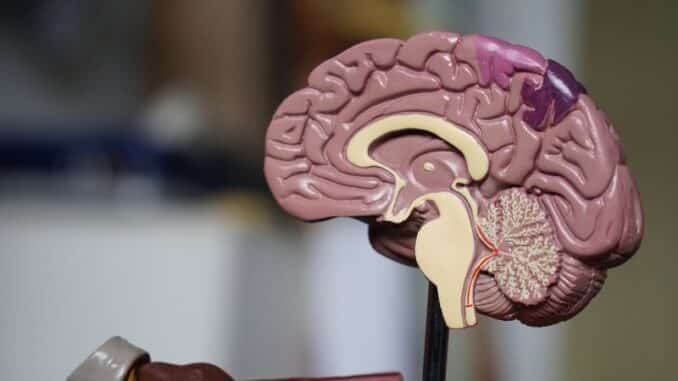 Učinci CBD ulja na Multiplu sklerozu mogu biti vrlo značajni