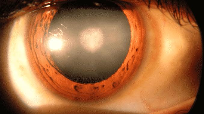 Katarakta u ljudskom oku