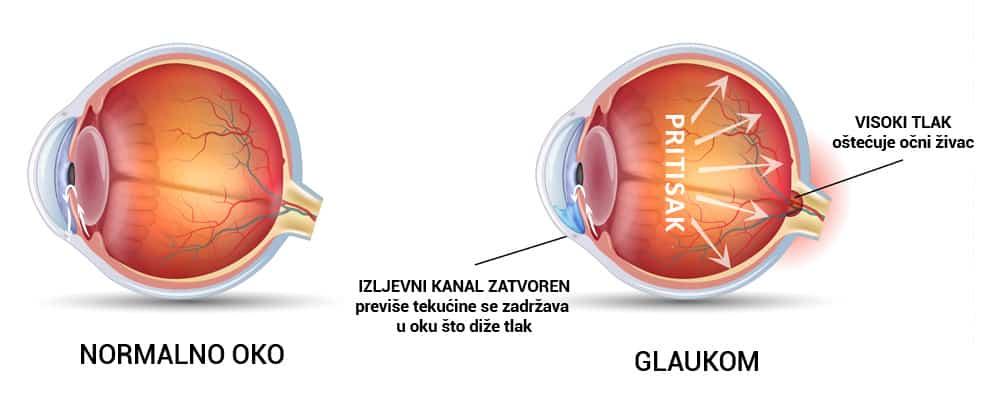 Katarakt je očna bolest koja zamagljuje vid stvarajući mrenu na oku.